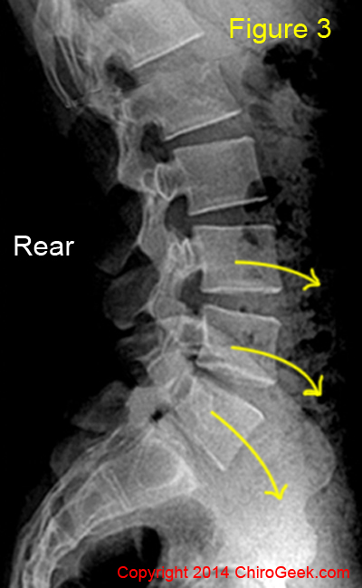 Mike robertson and spondylothesis